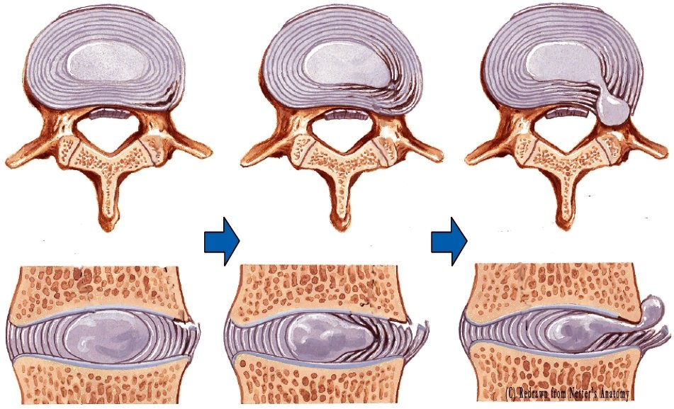 how to avoid herniated disc reddit
